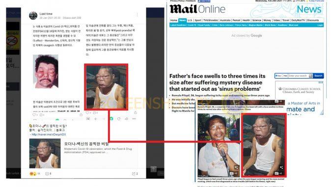 SALAH Foto Efek Samping Yang Dialami Setelah Vaksinasi ...